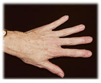 Hand Rejuvenation with fat transfer in Seattle