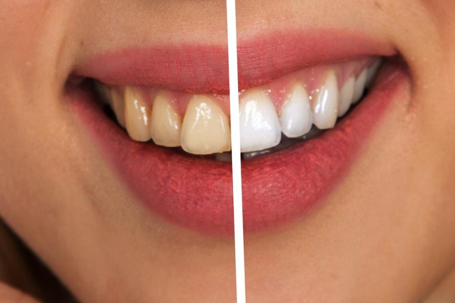 Comparatif de dents jaunâtres puis blanchies.
