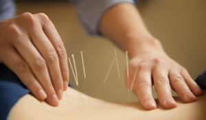acupuncture meridian therapy
