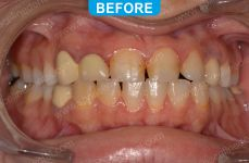 Cosmetic Dentistry - 2-1