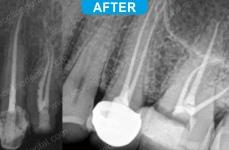 Endodontics - 1-2
