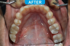 General Dentistry - 2-2