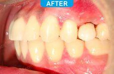 Implants - 4-3
