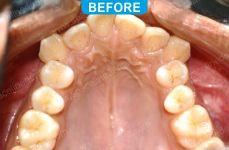 Orthodontics -3-2