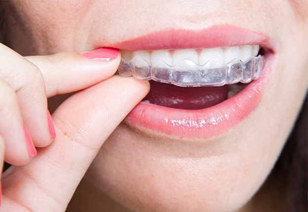 Inside braces and clear aligners