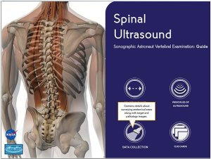 The Spinal Ultrasound training tool that launch in the fall of 2012 (Credits: NASA/Scott A. Dulchavsky).