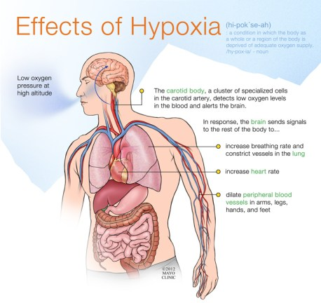 Effects of Hypoxia Courtesy of the Mayo Clinic