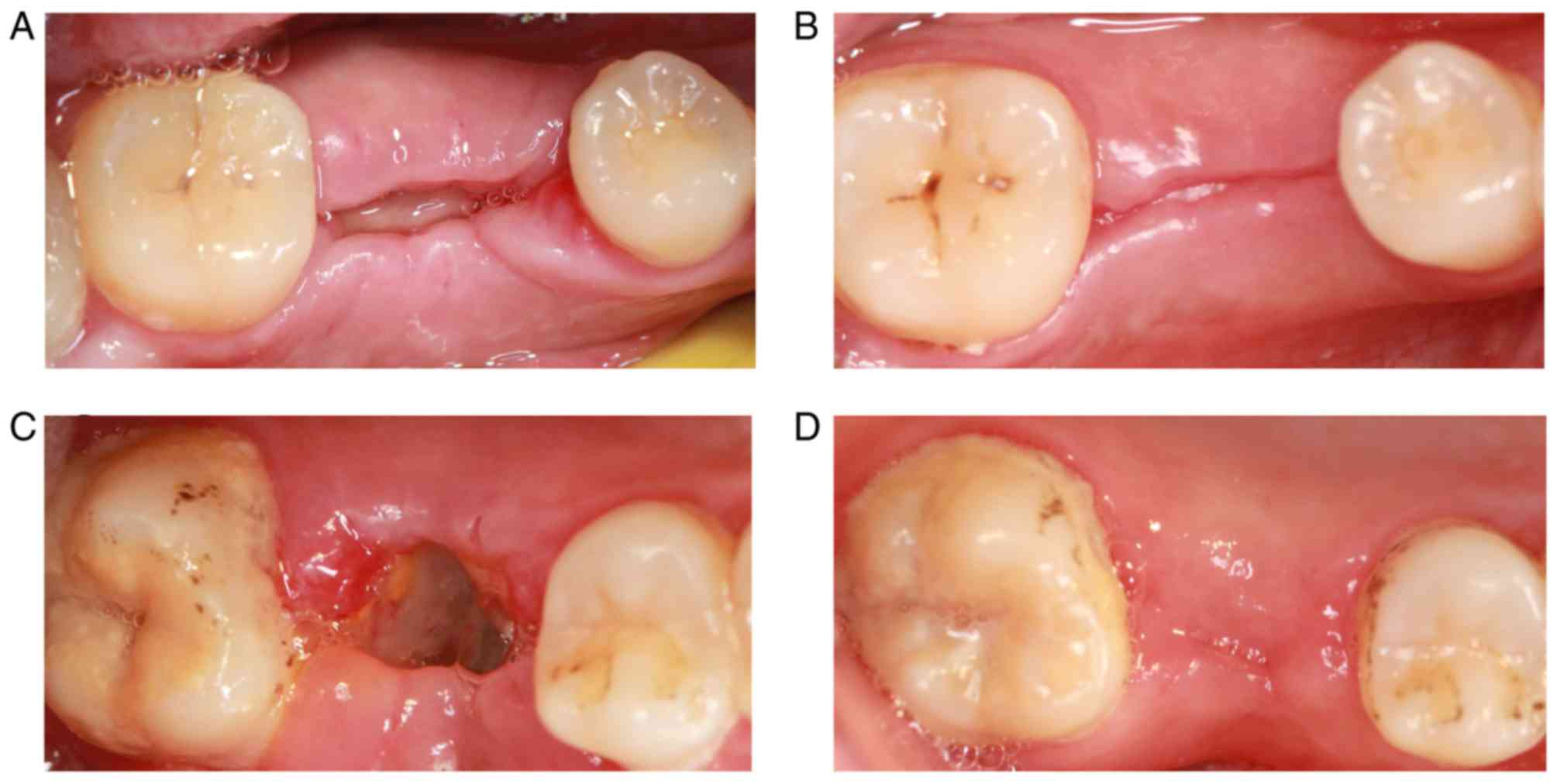 Granulation Tissue On Tooth Extraction Tissue Photos And