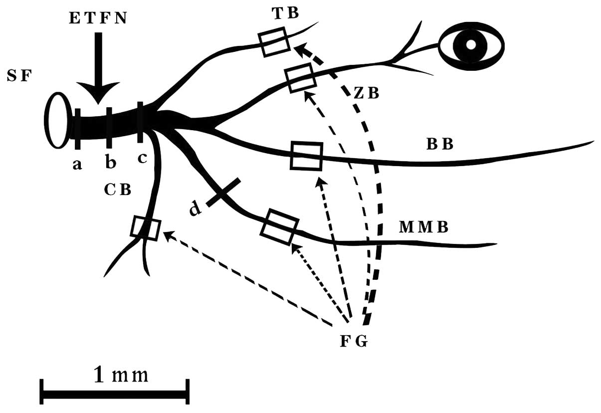 Motor Fiber Organization In The Extratemporal Trunk Of The