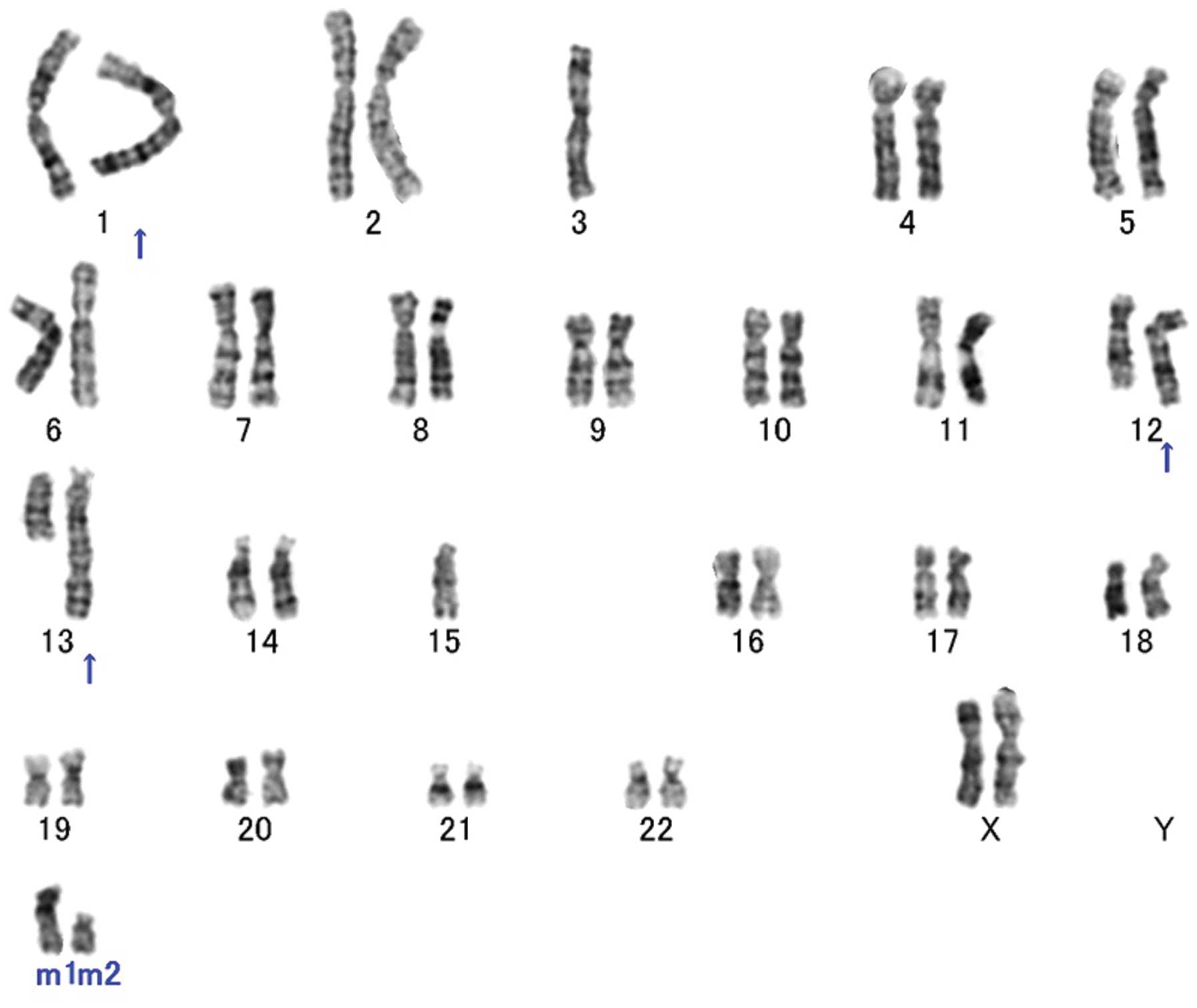 Duplication Of Chromosome Segment 12q13 15 In A Lipomatous Tumor With Minimal Nuclear Atypia A