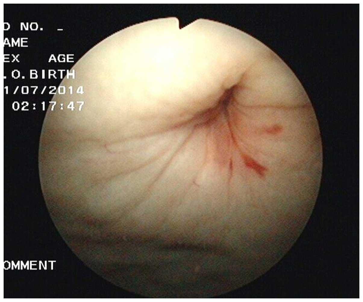 Peritoneal Bladder Fistula Following Radiotherapy For