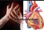 Heart Attack (Myocardial Infarction): Causes, Signs, Symptom and Prevention tips