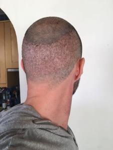 27657569_346591795823545_5414505748514135411_n-225x300 Perché fare il trapianto dei capelli in Turchia? Vantaggi e svantaggi di questo trattamento