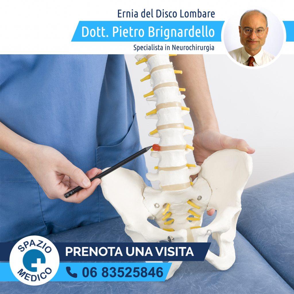 ernia-del-disco-lombare-trattamento