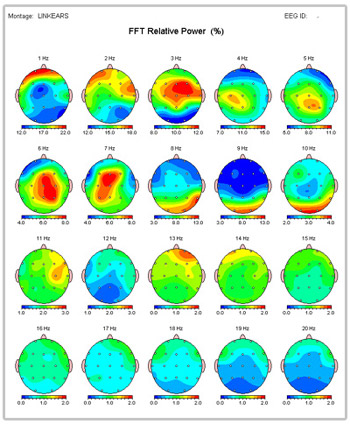 What can a QEEG Brain Map tell you?