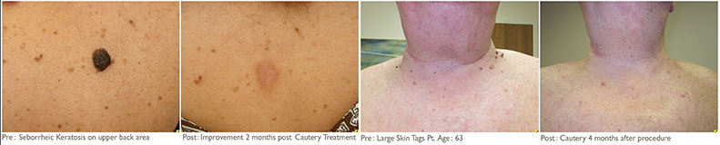 surgical-cautery-results-01