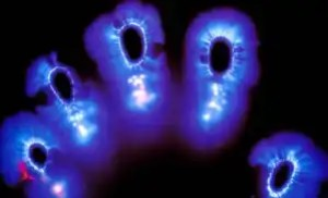 Kirlian photograph of damaged energy. (Photo credit: Dr. Thelma Moss)