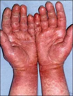 spina bifida latex allergy, latex allergy spina bifida