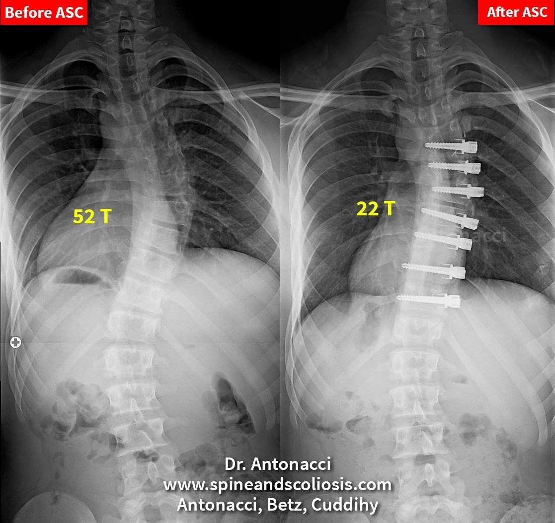Rs 14 Scoliosis Single Curve From 52 Thoracic
