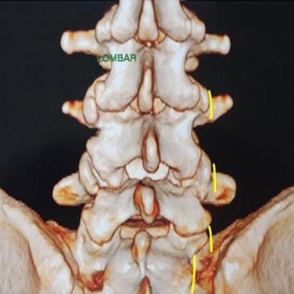 Radiofrequência - tratamento da dor crónica da coluna
