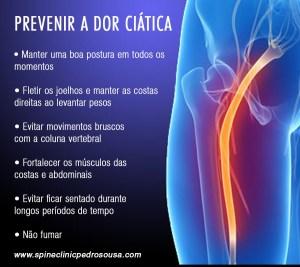 prevenir a ciática