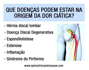 doenças ciática