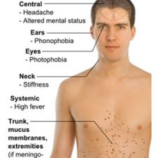 infections-of-the-spine-1