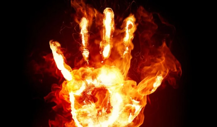 If the body is burnt in an accident like a fire, the first aid should be provided quickly keeping the head cool