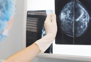 Machine learning algorithm accurately screened breast cancer risk