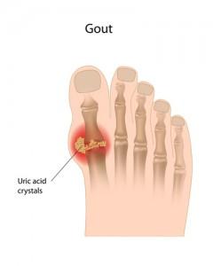 advice.gout.17web
