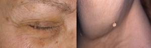 Skin tag on eyelid (l) and on arm
