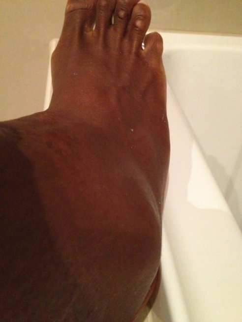 serena-williams-swollen-ankle