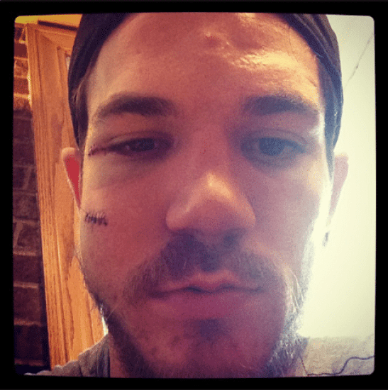 andrew-shaw-face-3