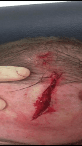 wayne-rooney-head-injury-2