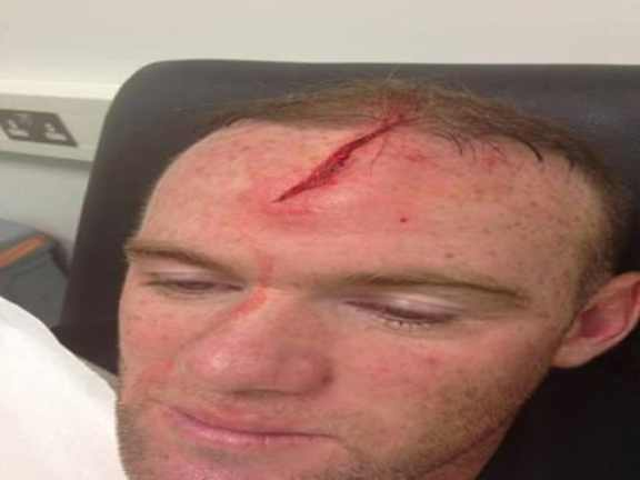 wayne-rooney-head-injury
