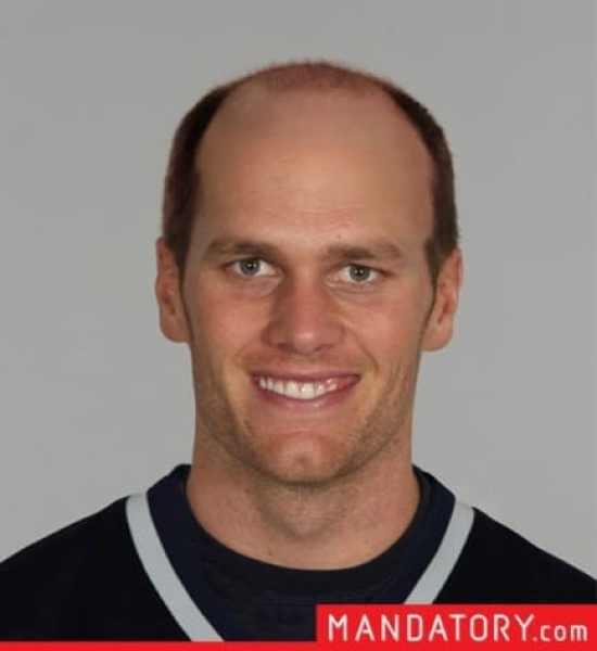 tom-brady-bald