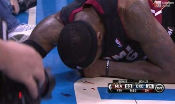 lebron-james-bloodied-3