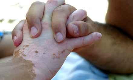 El vitiligo y las emociones