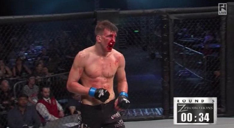 MMA Fighter Matt Dwyer's Nose Explodes, Causing Fighters to Slip in Blood
