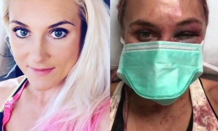Shocking Before and After of UFC Star Yana Kunitskaya's Broken Nose