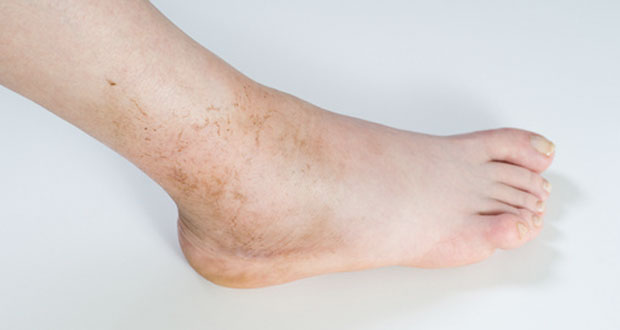 Image result for ankle swelling