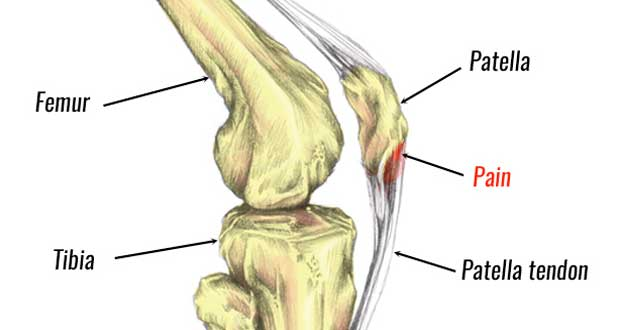 Wrist Tendonitis Exercises