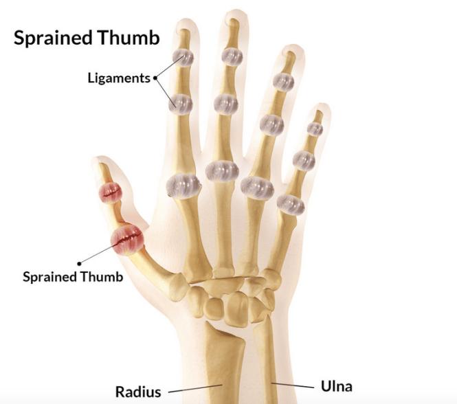 Mallet Finger Injuries