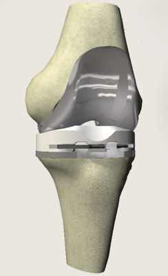 Knee Replacement  Artifical knees
