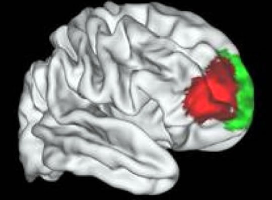 Post image for Unique Human Brain Area Identified that Separates Us From Monkeys