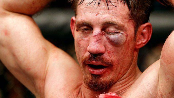 MMA-Injury
