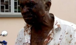 Priest Hacked To Near Death By Son Over Land