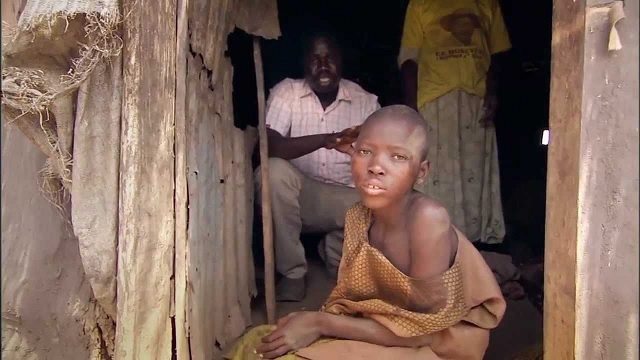 Acholi Region Leaders Cry Out For Government As Nodding Disease Hits Again With Over 300 In Alarming Conditions