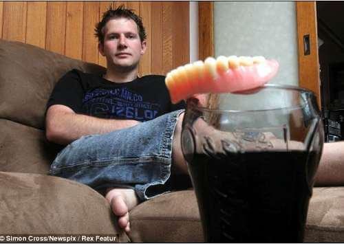 Pio osam litara Coca Cole dnevno i istrunuli mu svi zubi