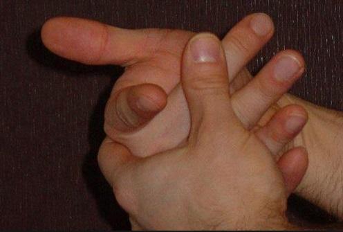 Je li pucanje prstiju bezopasno